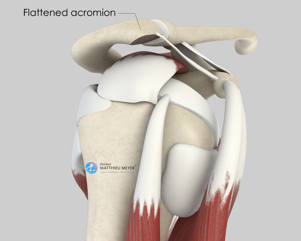 Acromion after acromioplasty (lateral view)