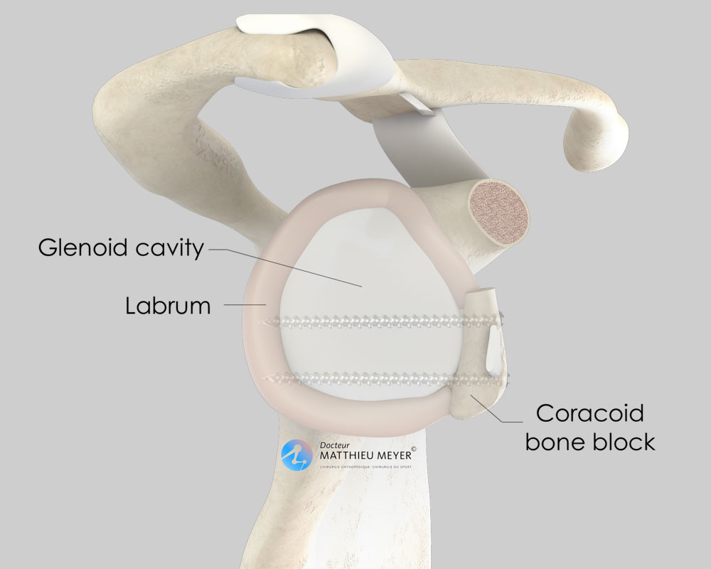 Coracoid bone block (side view): increase in the surface area of the glenoid