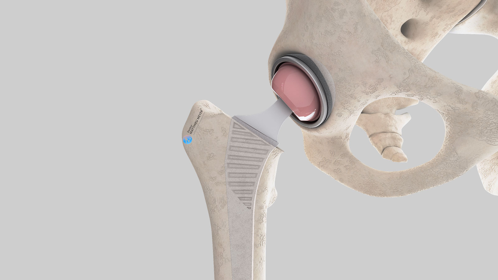 Total hip prothesis in place