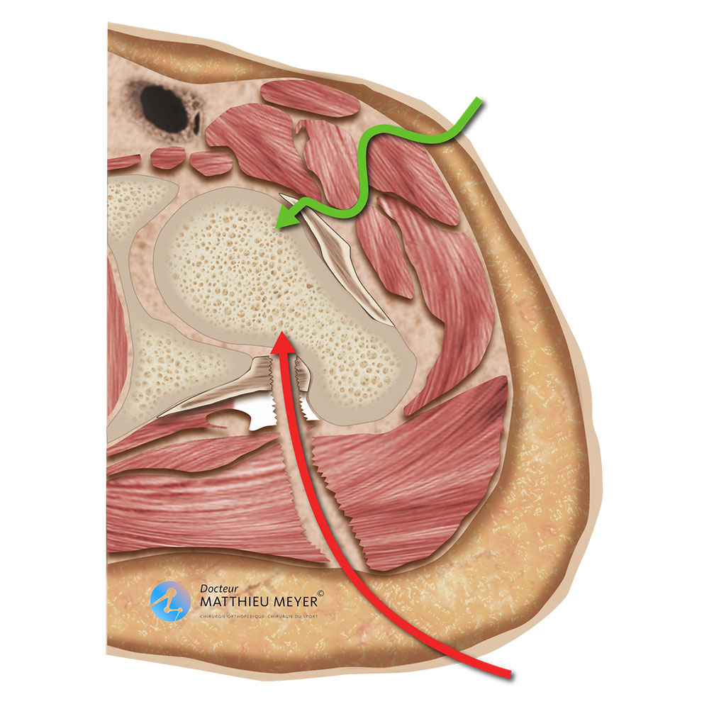 Minimally invasive anterior approach