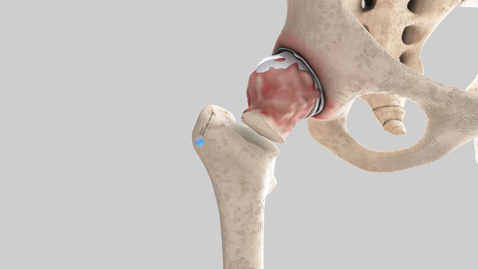 Extraction of femoral head