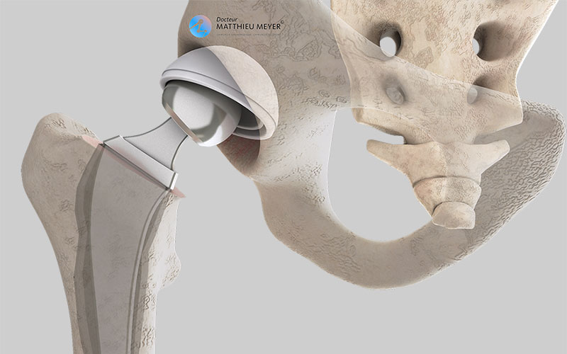Loosening of the hip prosthesis and underneath: deviation of acetabular implant and resorption of bone in contact with the femoral stem