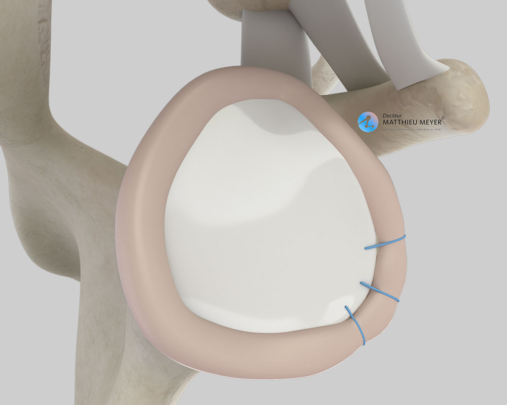 Final appearance of the reinsertion of the labrum (lateral view)
