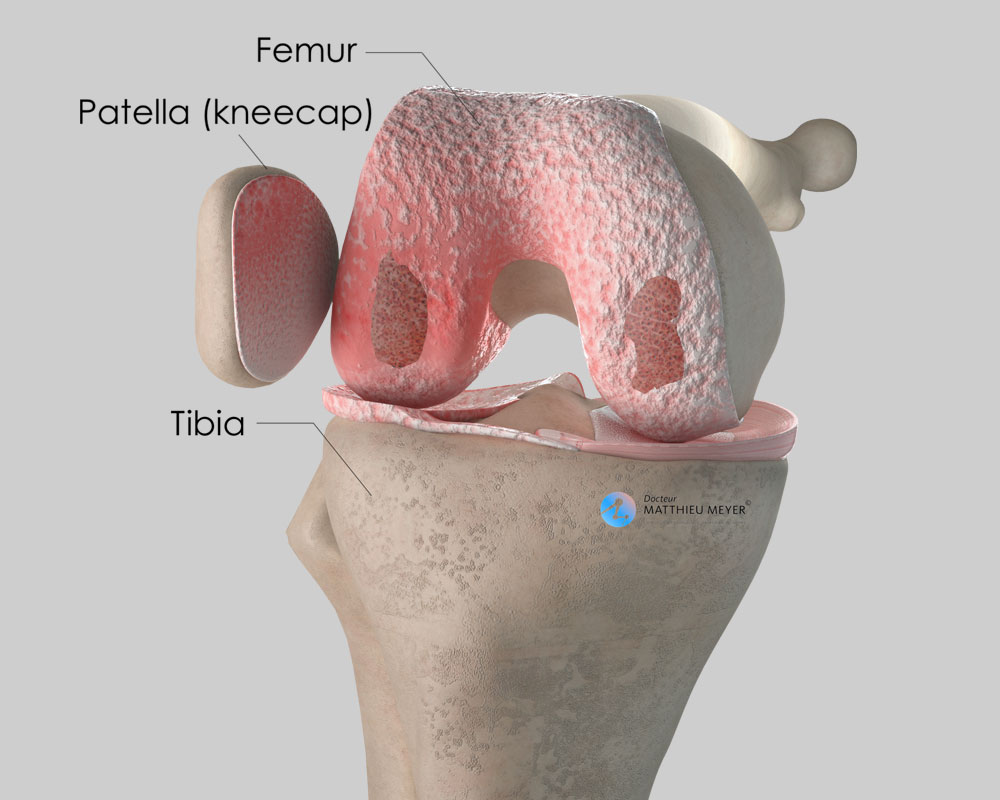 Diffuse wear of the knee cartilage