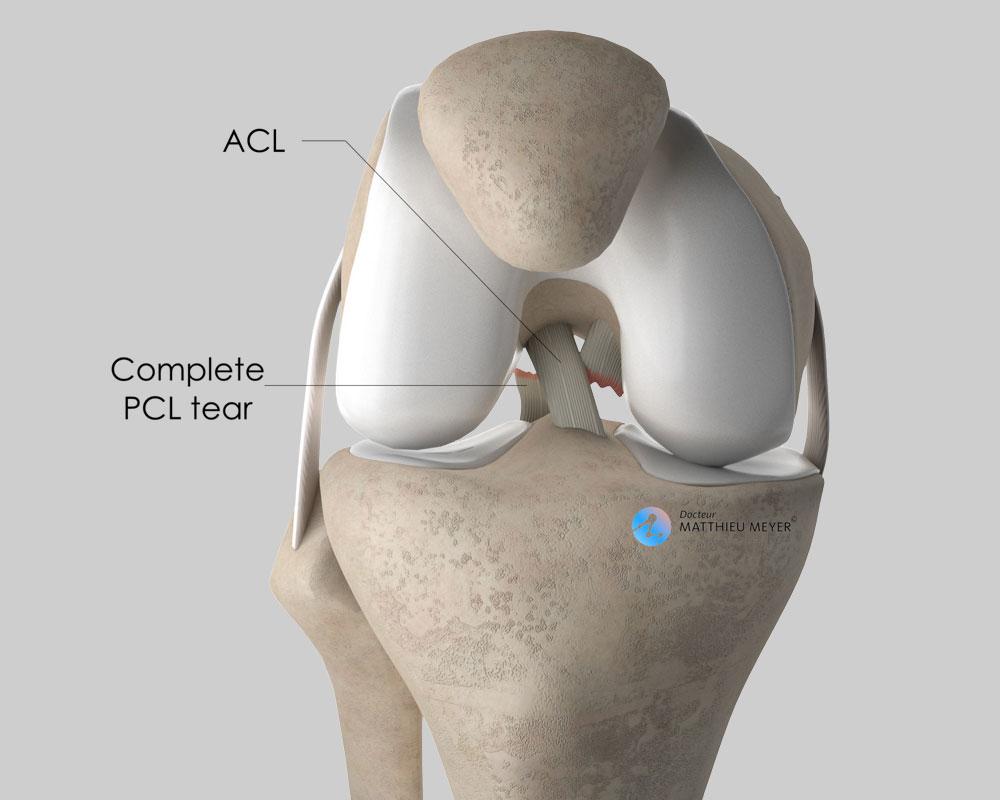 Posterior cruciate ligament rupture (anterior view)