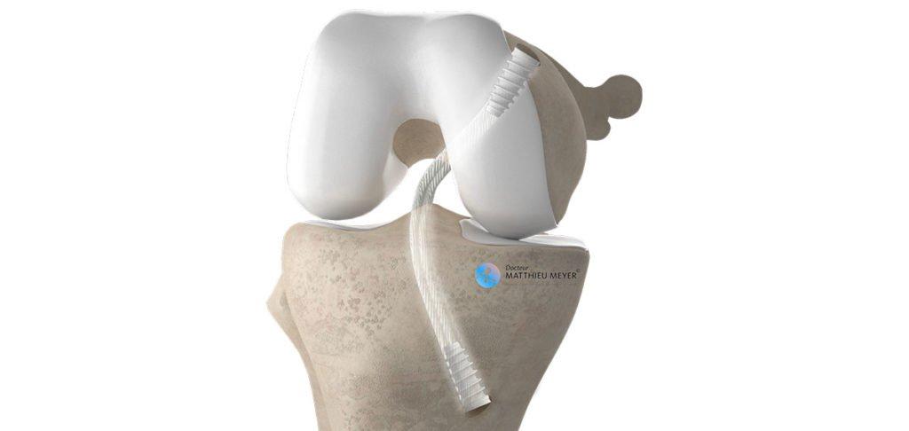 Ligamentoplastie du Ligament Croisé Postérieur