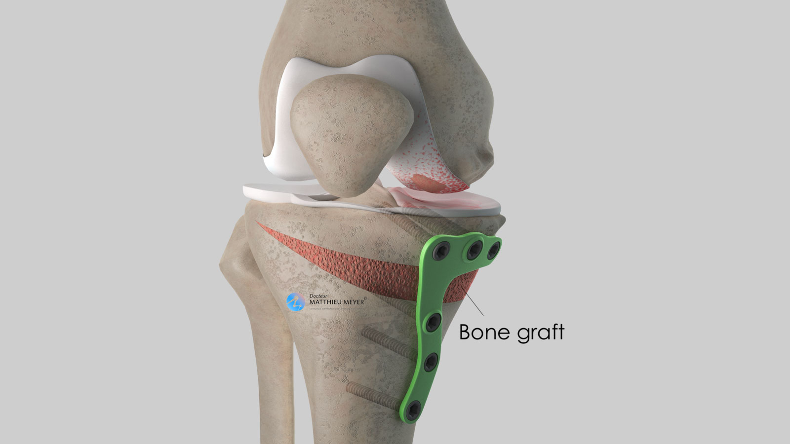 Filling with bone graft and plate osteosynthesis