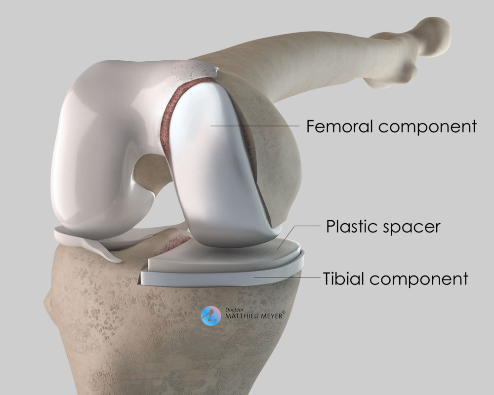 Partial medial replacement