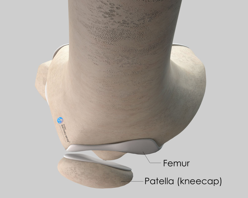 Patella slightly tilted and off-centre