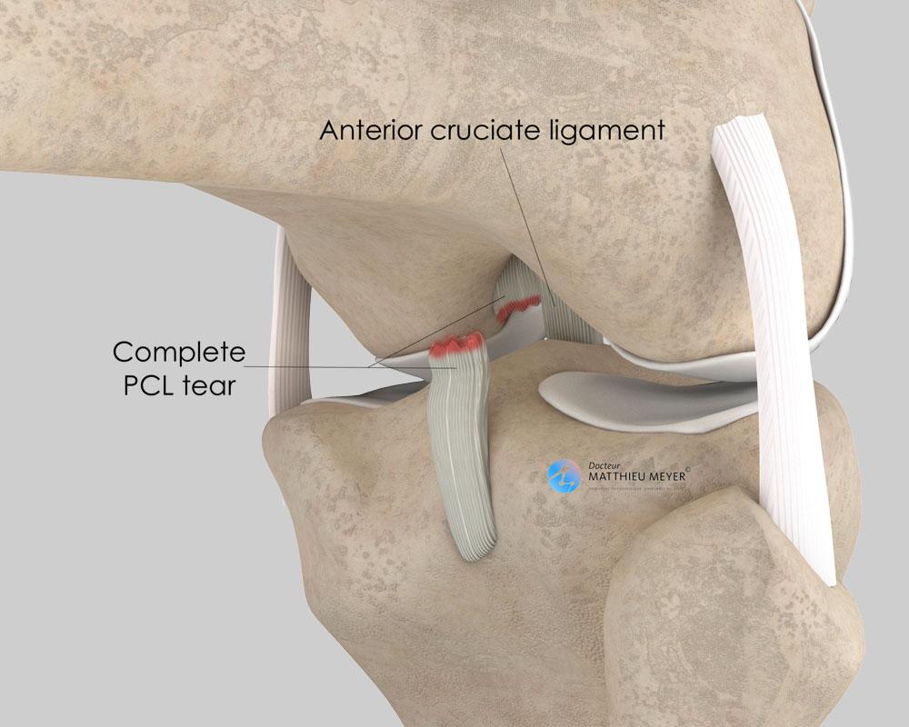 Posterior cruciate ligament rupture (posterior view)