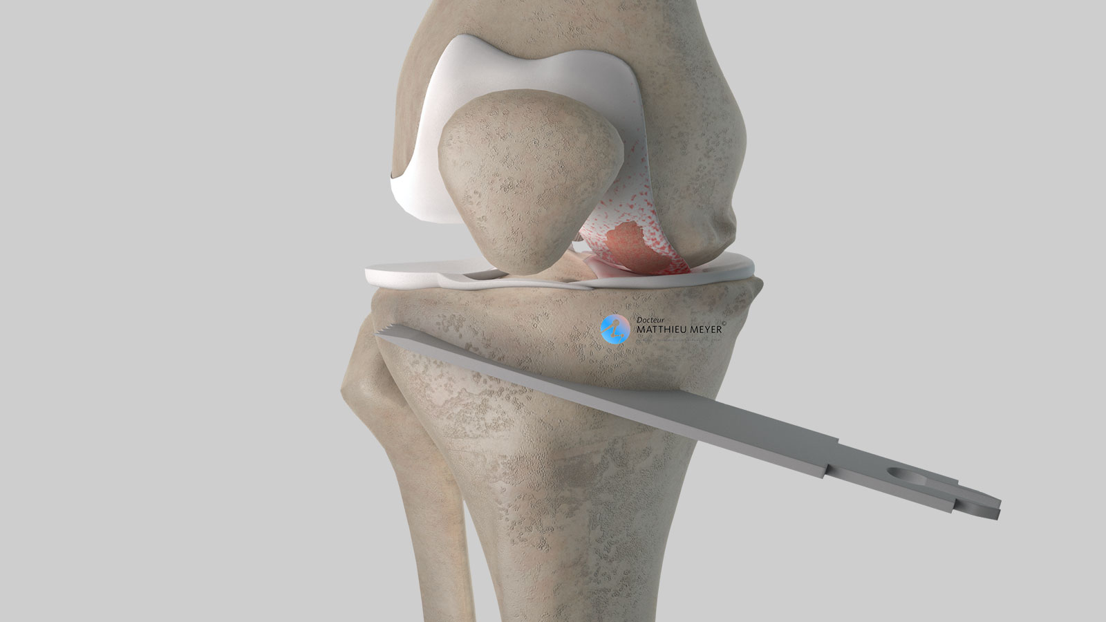 Creation of tibial osteotomy line