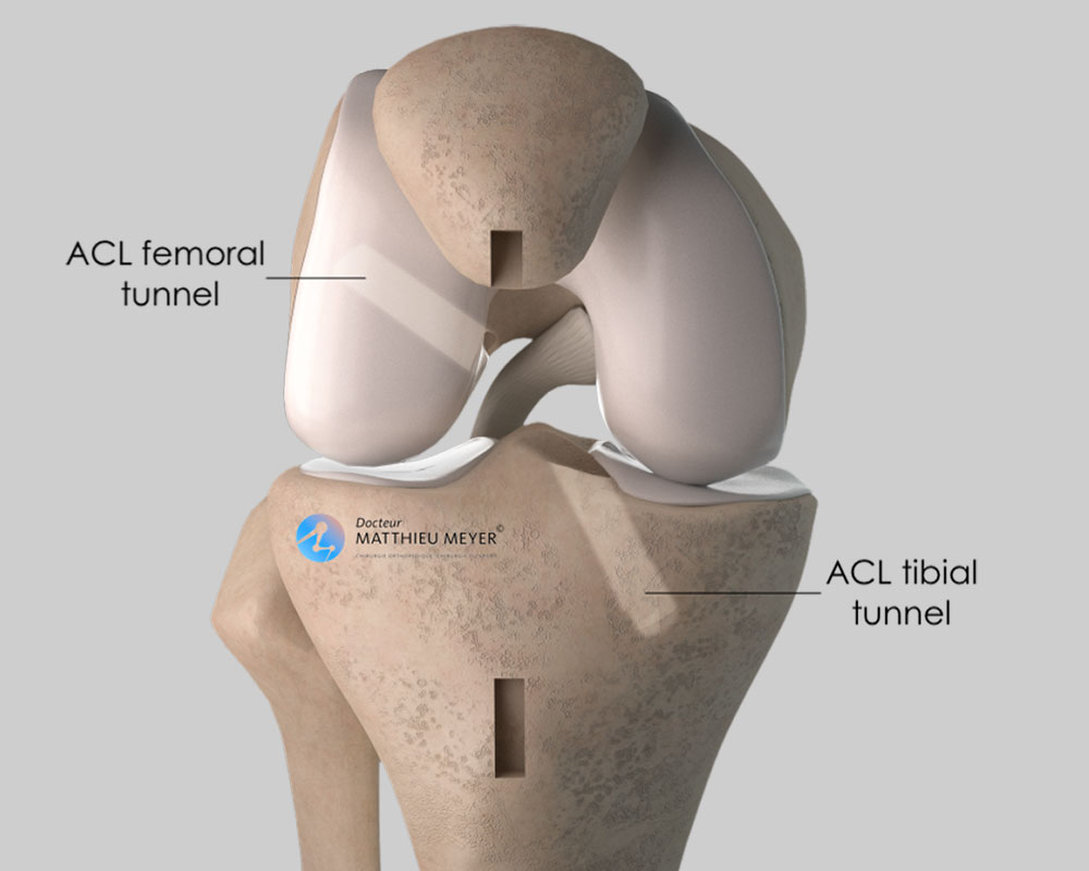 Creation of bone tunnels