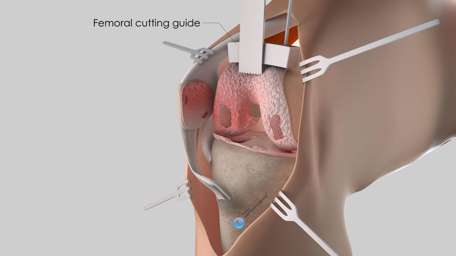 Preparation of the femur