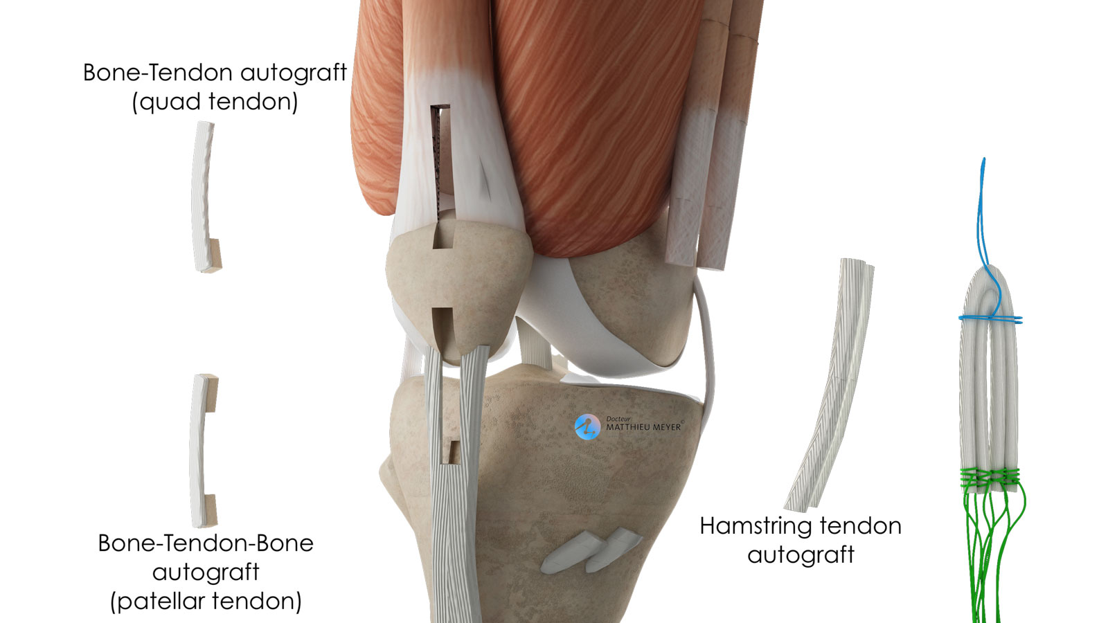 Tendons used as grafts to reconstruct the PCL