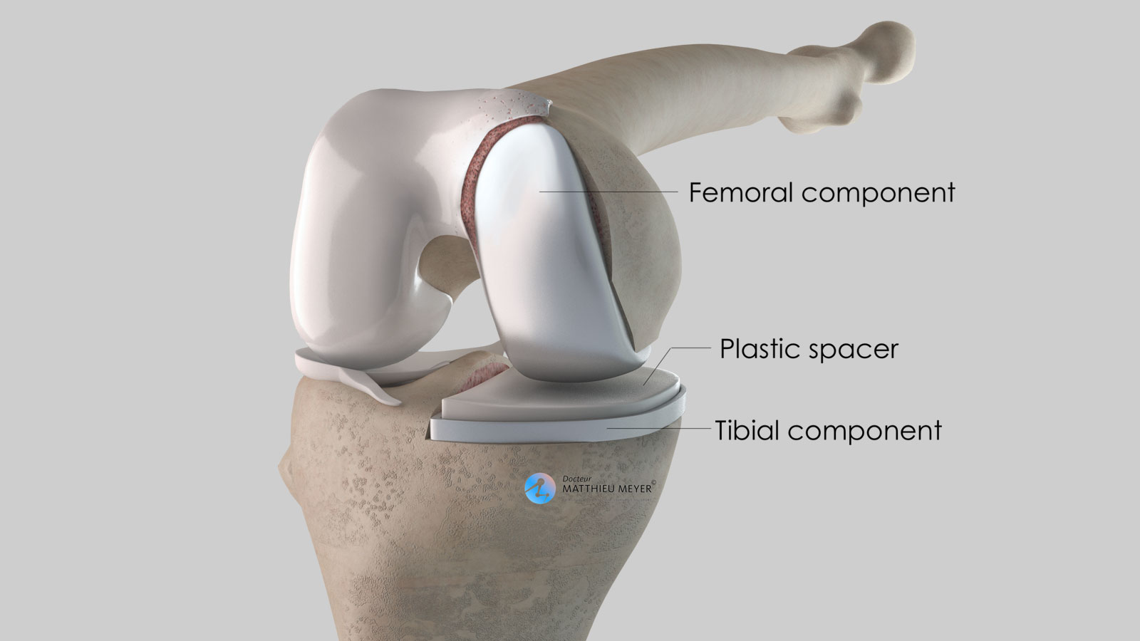Partial knee replacement: final appearance