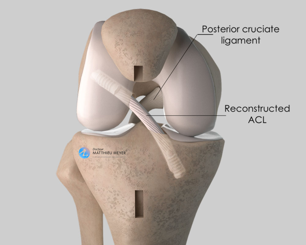 ACL reconstruction with patellar tendon: final appearance