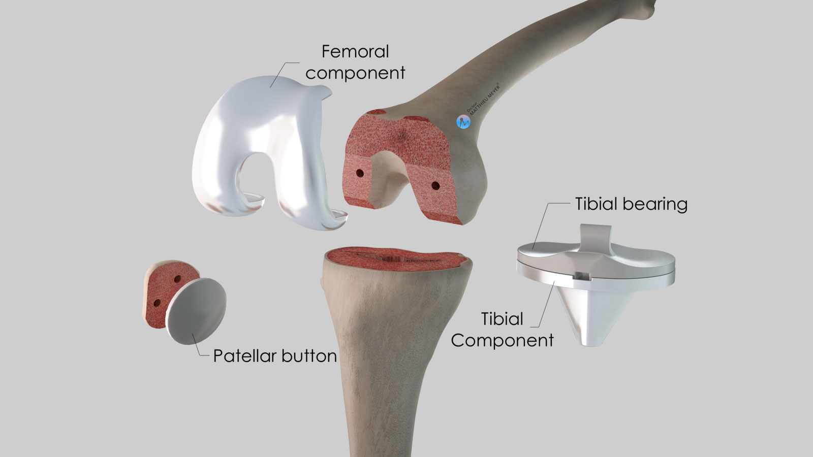 All the components of a knee replacement