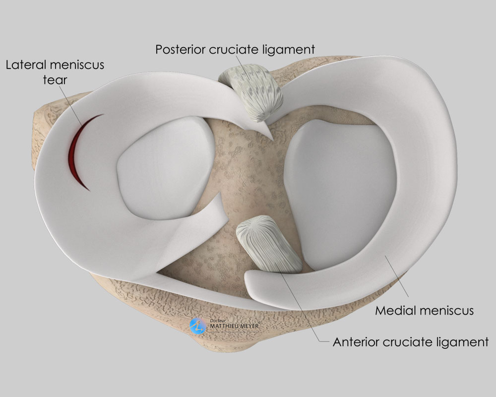 Stable lateral meniscal lesion