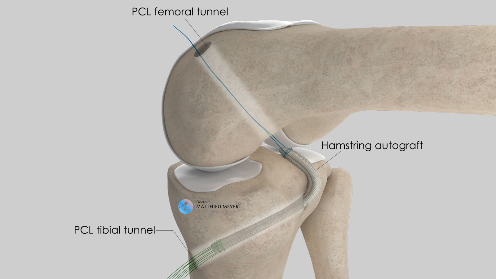Insertion of the ligament graft in the bone tunnels
