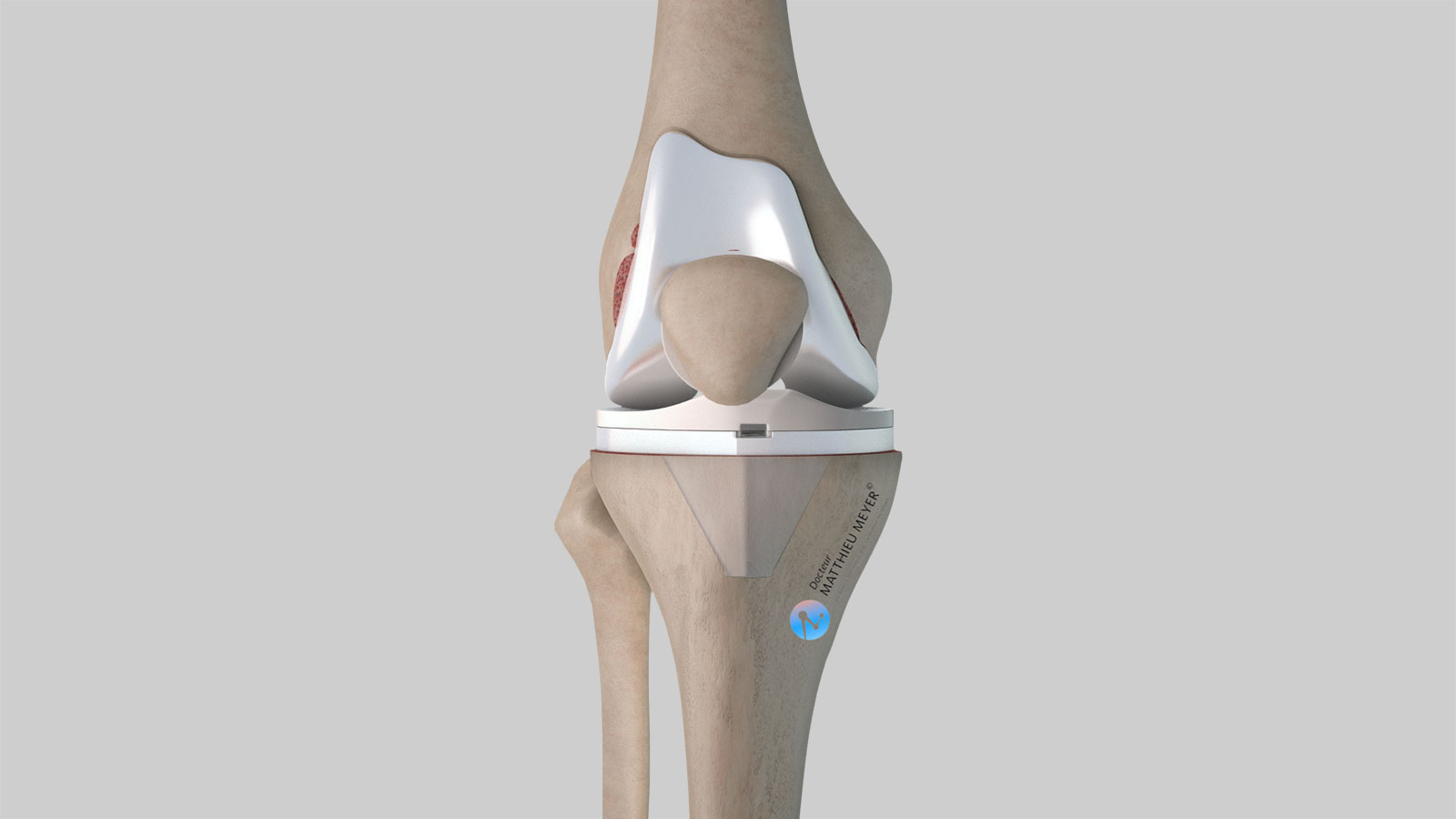 Total knee replacement: frontal view