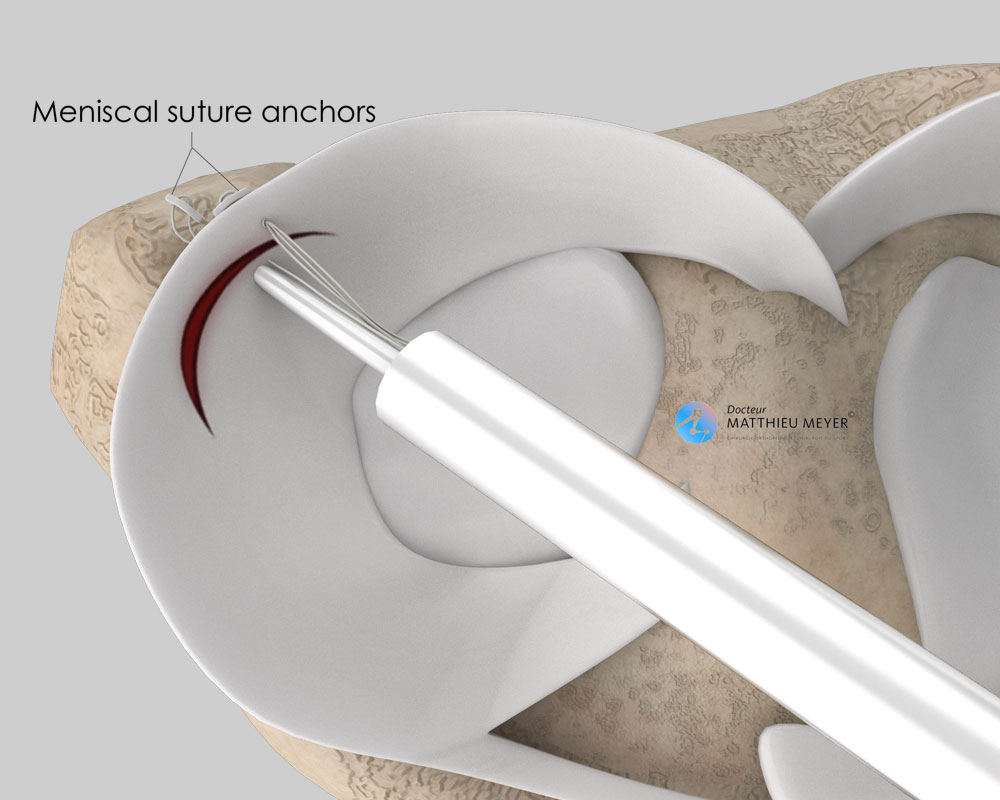 Suture of lateral meniscal lesion