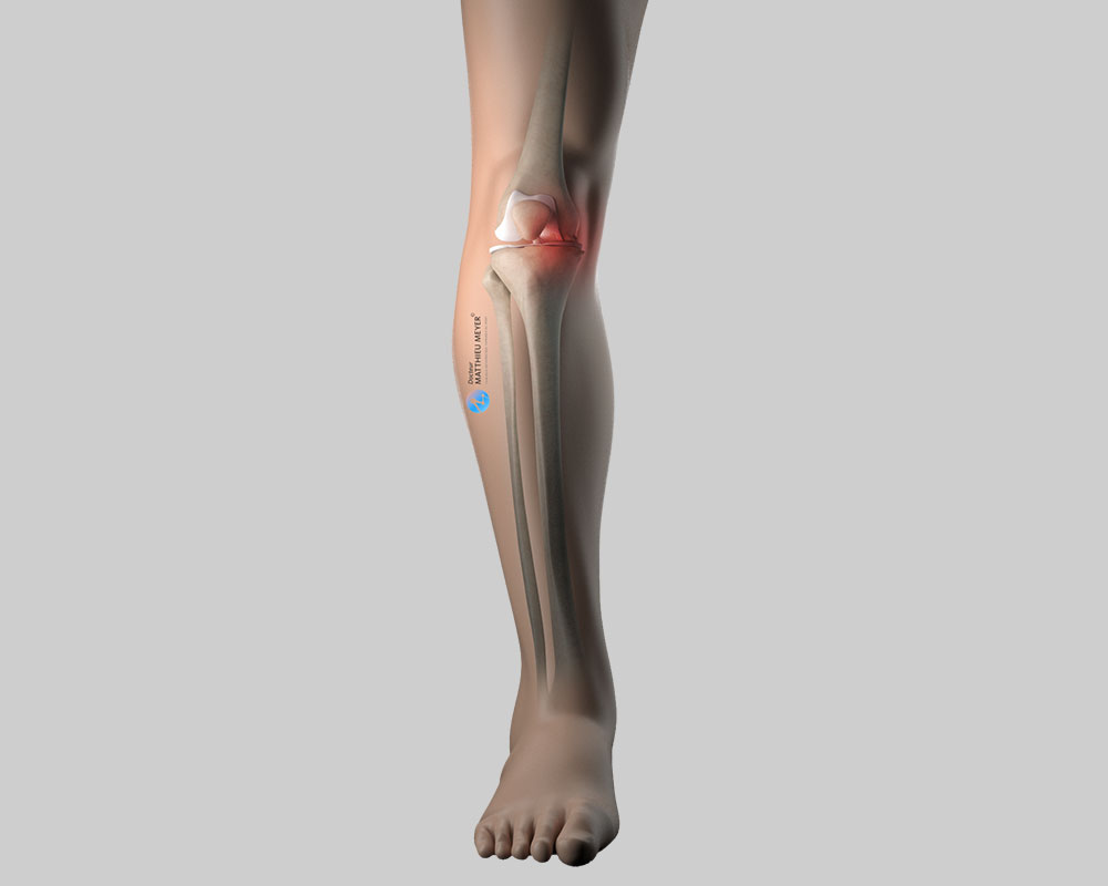 Knee axis before correction