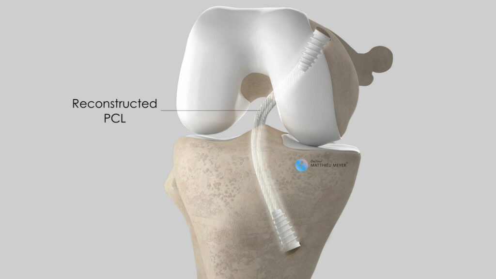 PCL reconstruction: final appearance with graft fixed in place using interference screws