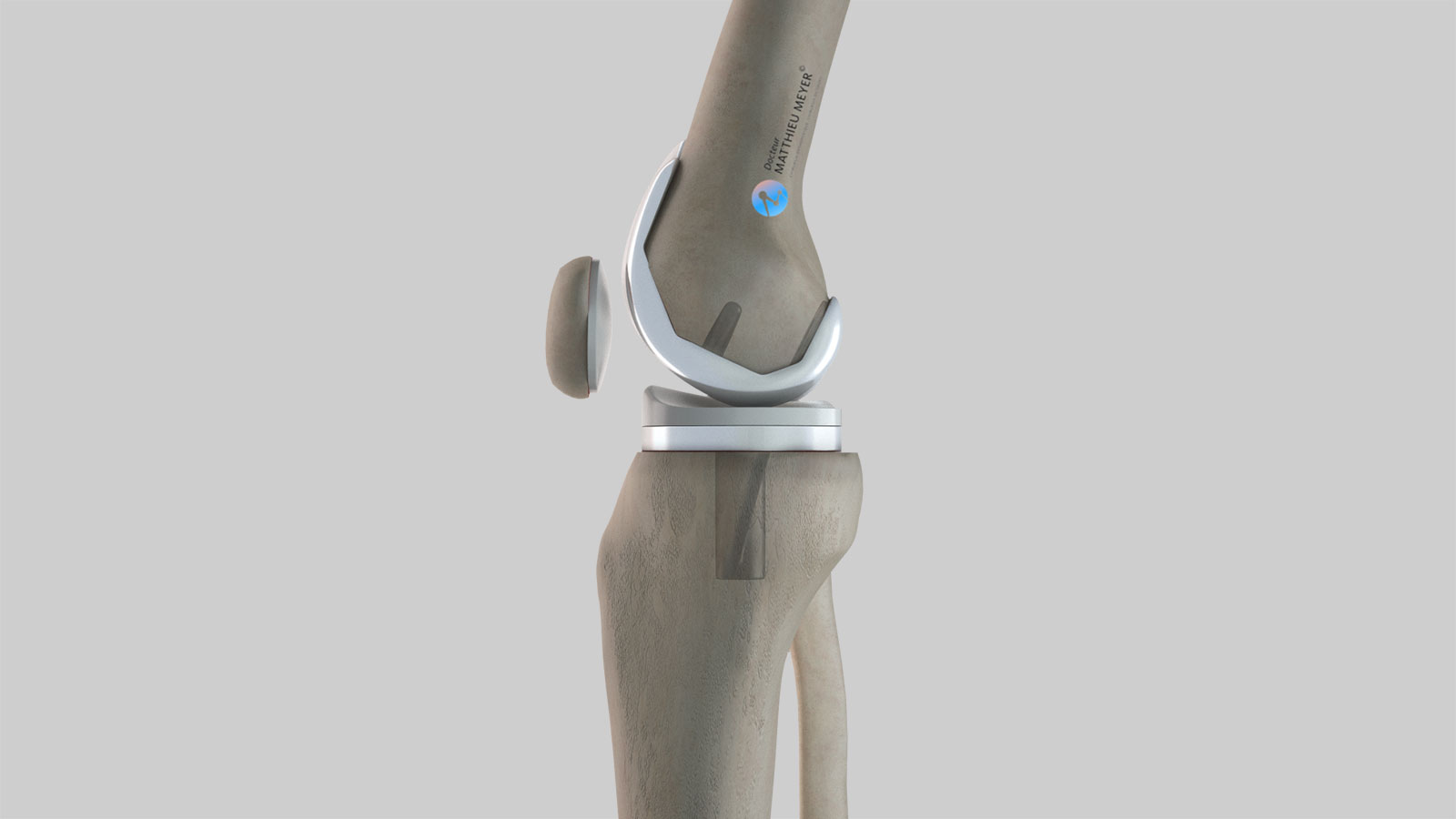 Total knee replacement: lateral view