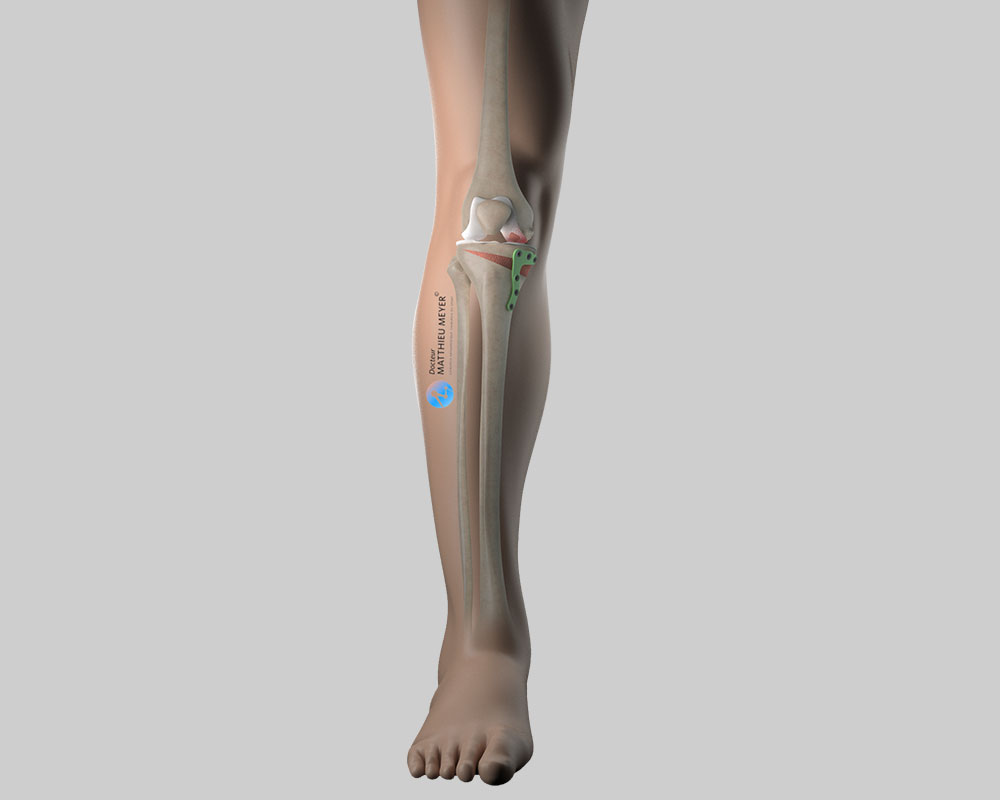 Knee axis after correction