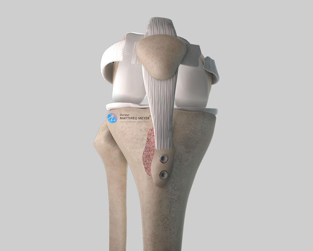 No patella dislocation when bending