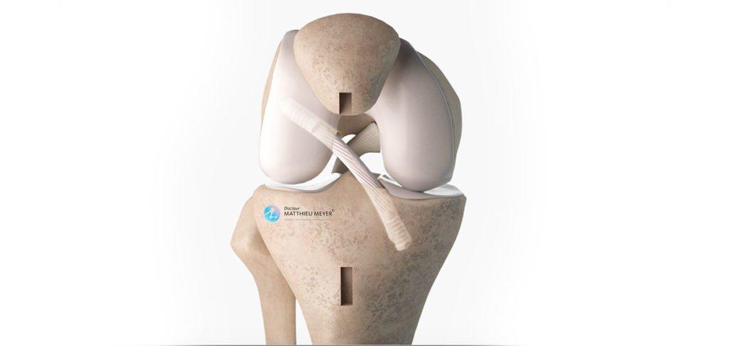 Reconstruction itérative du ligament croisé antérieur