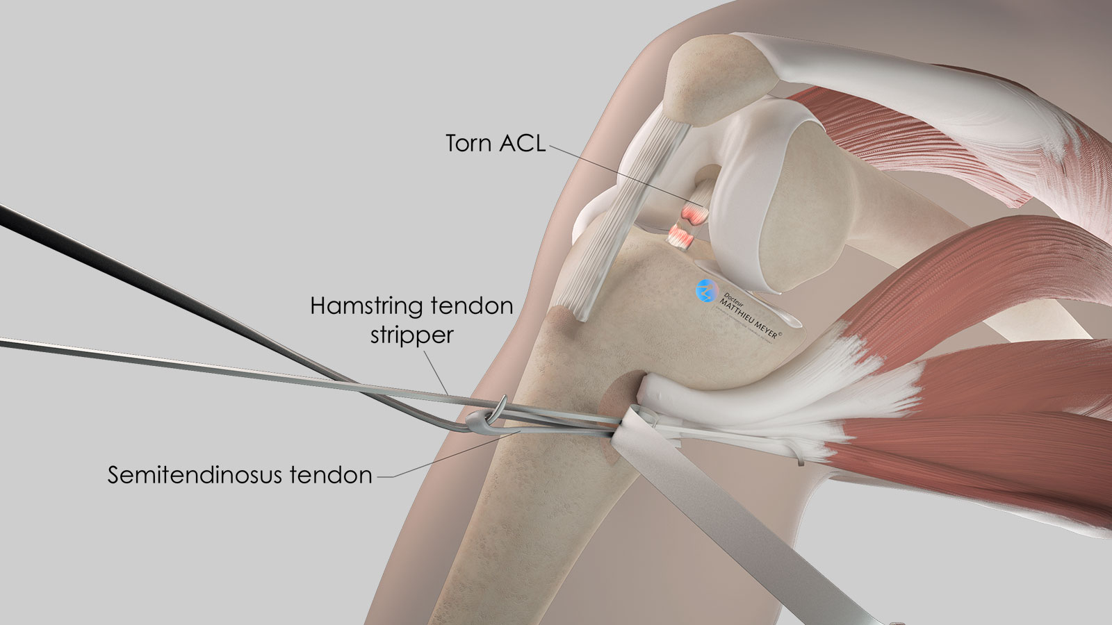 Harvest of the semitendinosus tendon with a stripper