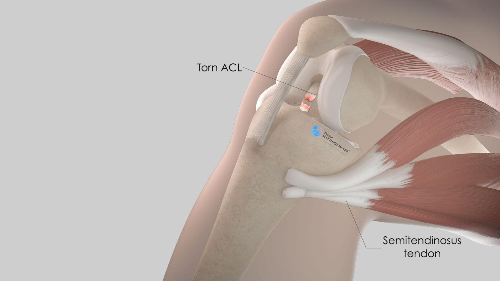 Location of the semitendinosus tendon