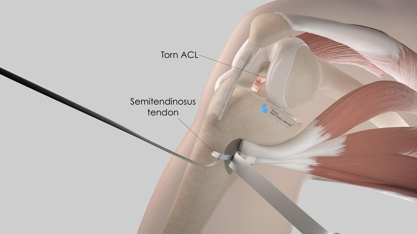 Release of the semitendinosus tendon