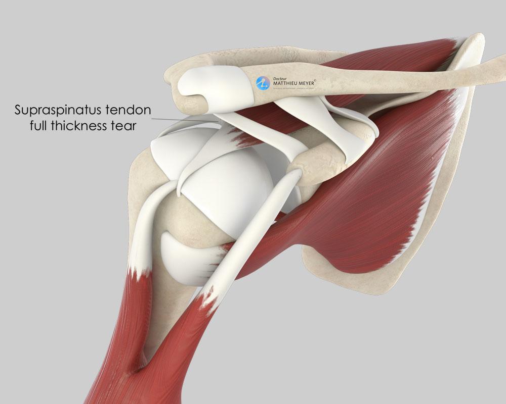 Rotator cuff tendon tear