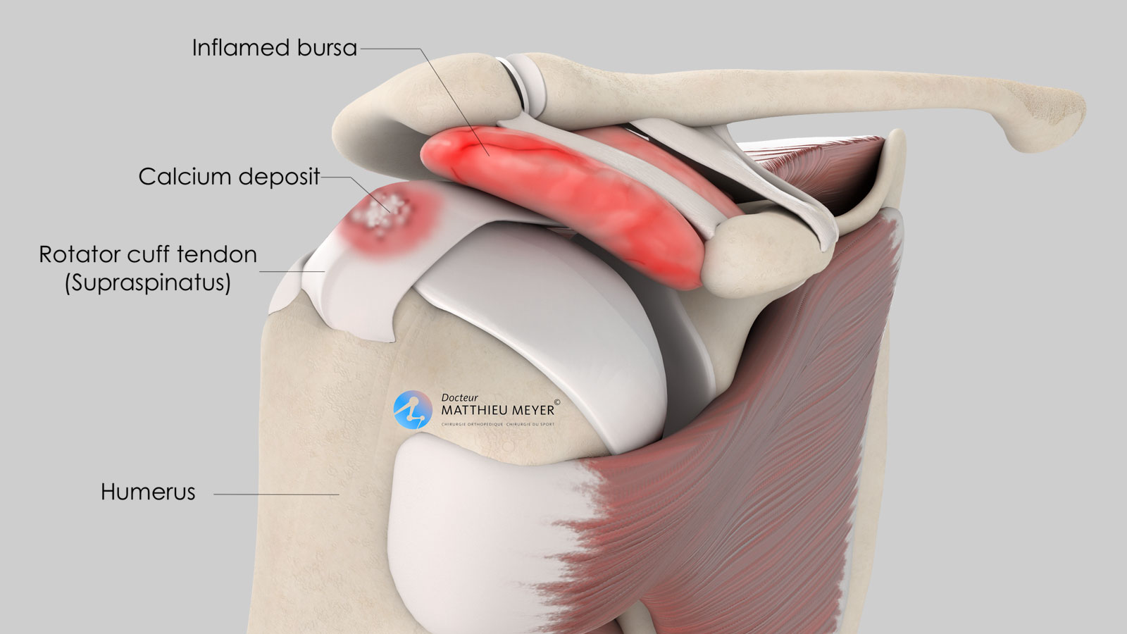 Calcific tendonitis of the rotator cuff