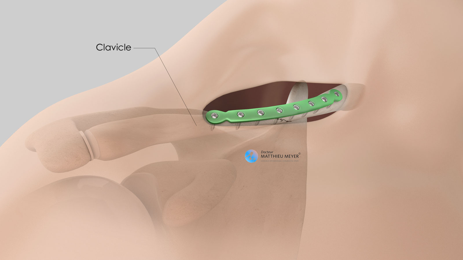 Clavicle osteosynthesis plate fixed with screws