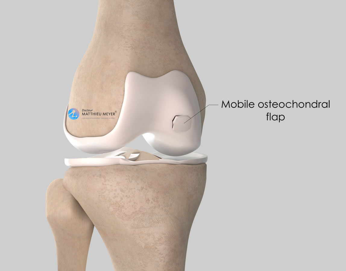 Mobile osteochondral fragment