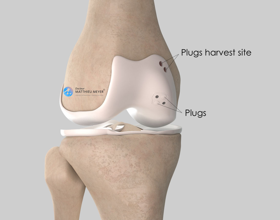 Combined fixation with screws and osteochondral autograft plugs
