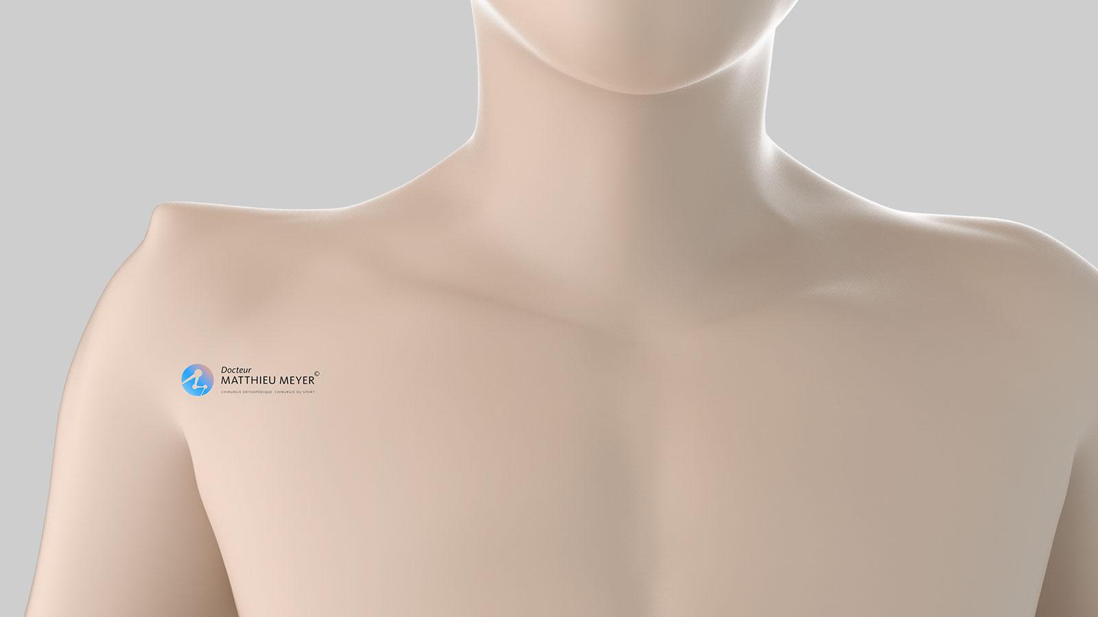 Type 3 and 5 shoulder deformity