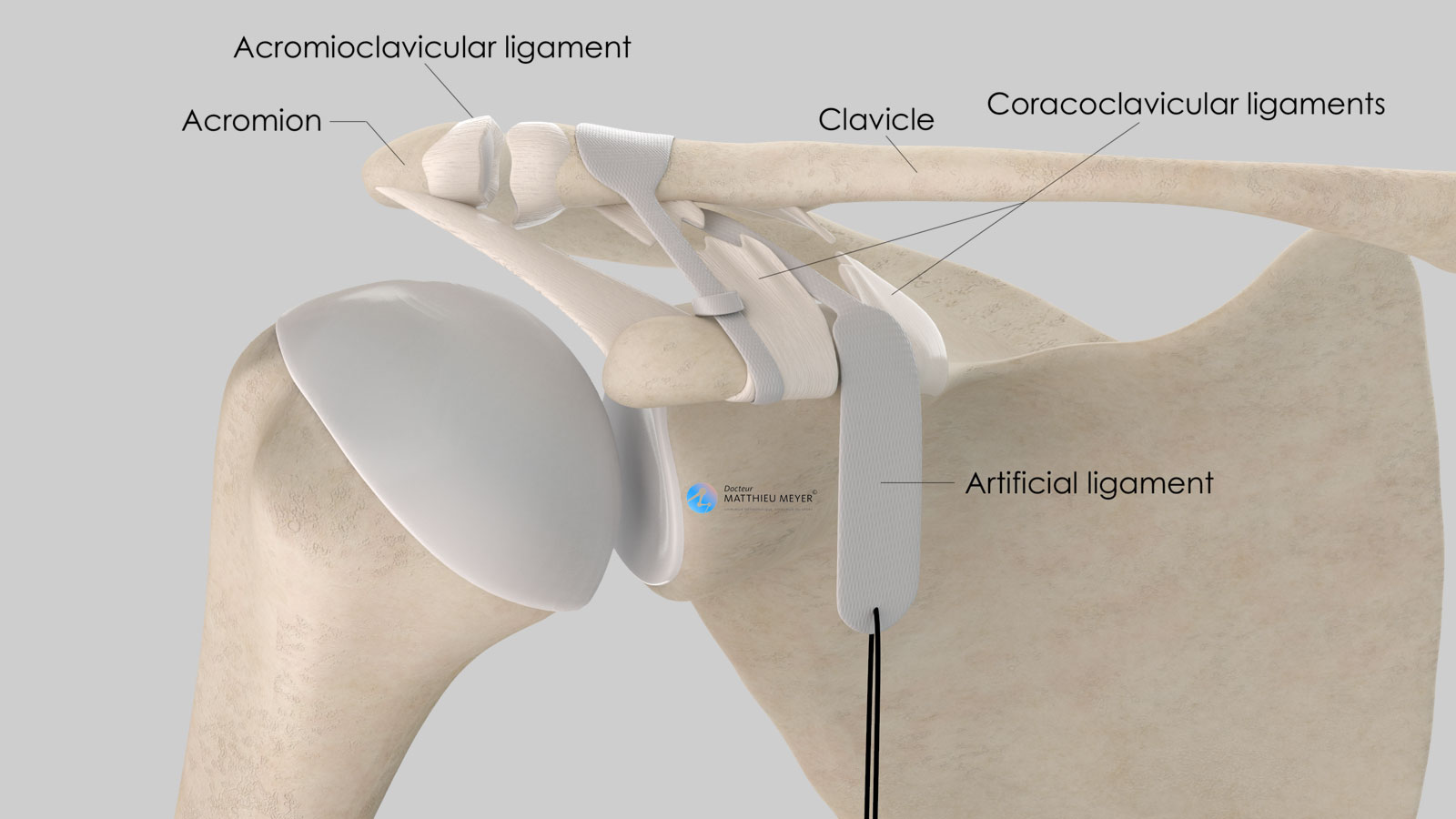 Insertion of the artificial ligament: attaching the clavicle to the coracoid (anterior view)