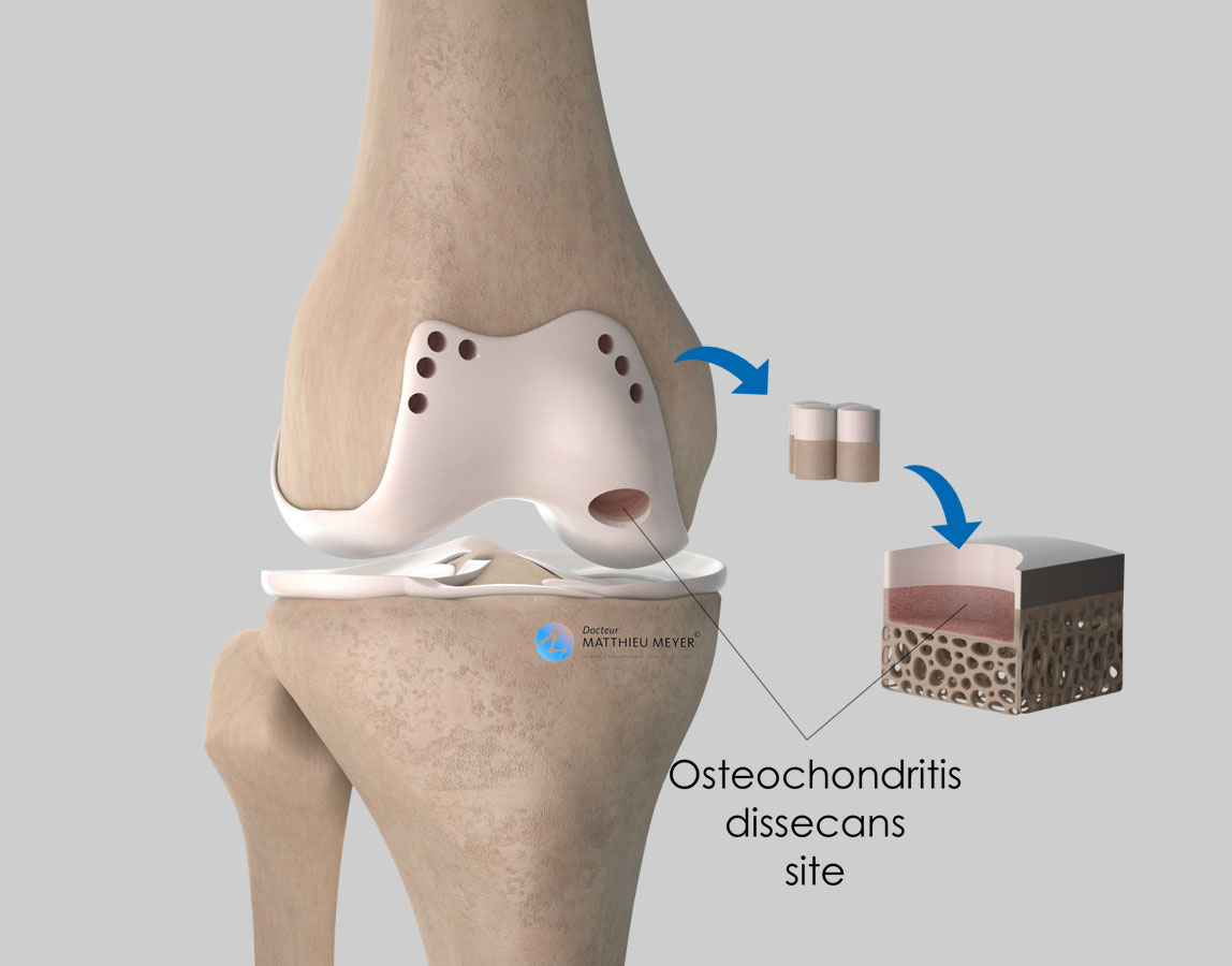 Harvesting of osteochondral plugs around the edge of the femoral cartilage