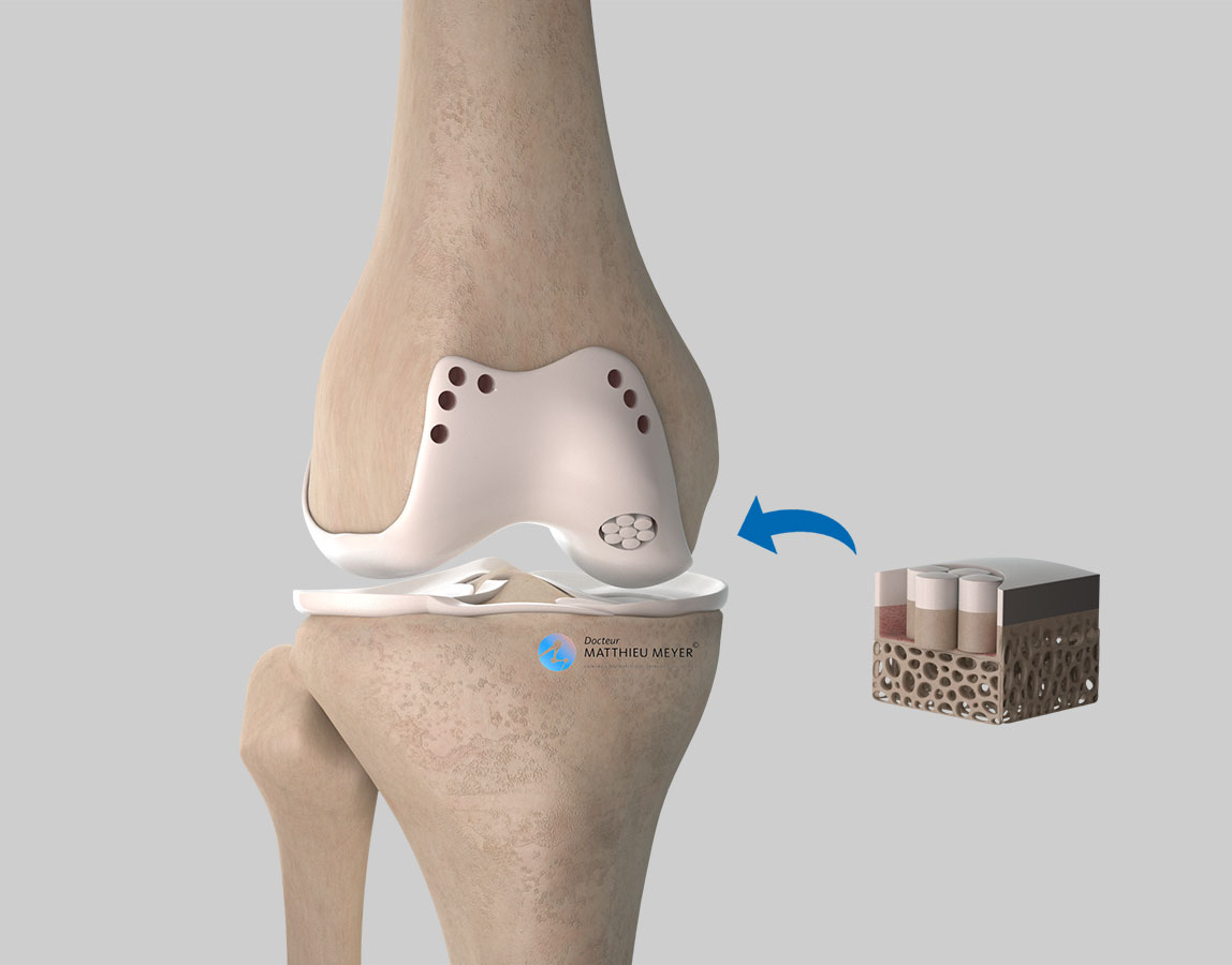 Transplanting osteochondral plugs in the area affected with osteochondritis