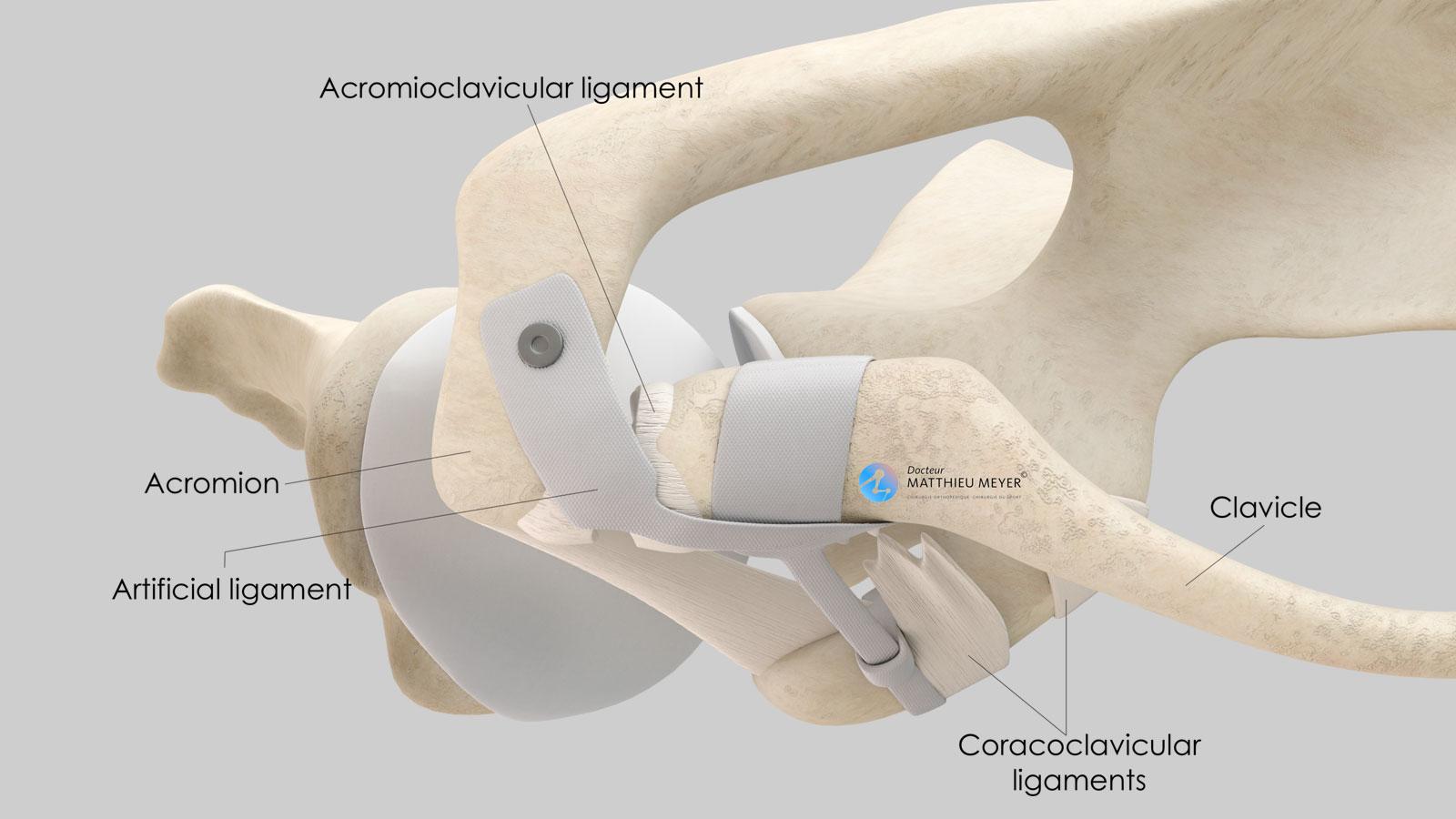 Stabilisation par ligament artificiel : Aspect final (vue supérieure)